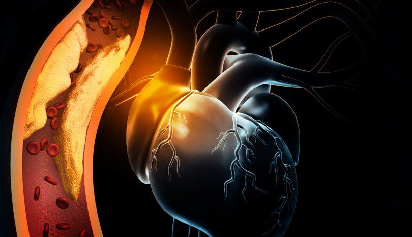 Arterial Blockage – ST-Elevation Myocardial Infarction (STEMI)