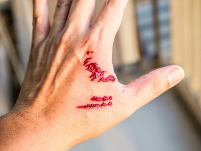 Cuts and Puncture Wounds