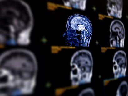 Gadolinium-Based MRI Contrast Agents