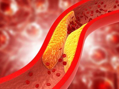 Partial Arterial Blockages